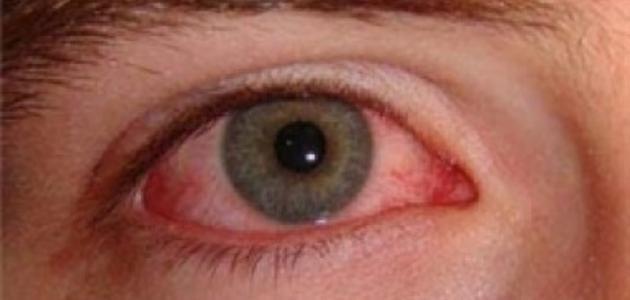 التهاب الملتحمة الفيروسي بالعين .. الأسباب والعلاج