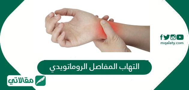 التهاب المفاصل الروماتويدي (الروماتيزم) أعراضه وكيفية علاجه