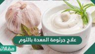 علاج جرثومة المعدة بالثوم … وصفات الثوم لعلاج البكتيريا البوابية