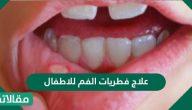 علاج فطريات الفم عند الاطفال وطرق الوقاية منها