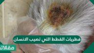 فطريات القطط التي تصيب الانسان