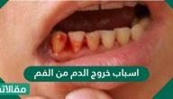 ما هي اسباب خروج الدم من الفم للاطفال