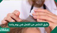 طرق التخلص من القمل في يوم واحد بوصفات طبيعية وبالعلاج الطبي