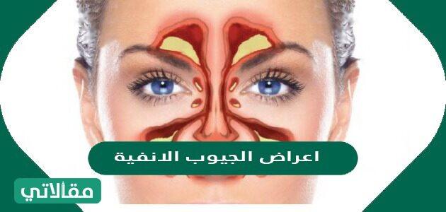 اعراض الجيوب الأنفية