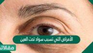 الأمراض التي تسبب سواد تحت العين