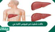 حالات شفيت من فيروس الكبد بي