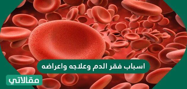 أسباب فقر الدم وعلاجه وأعراضه
